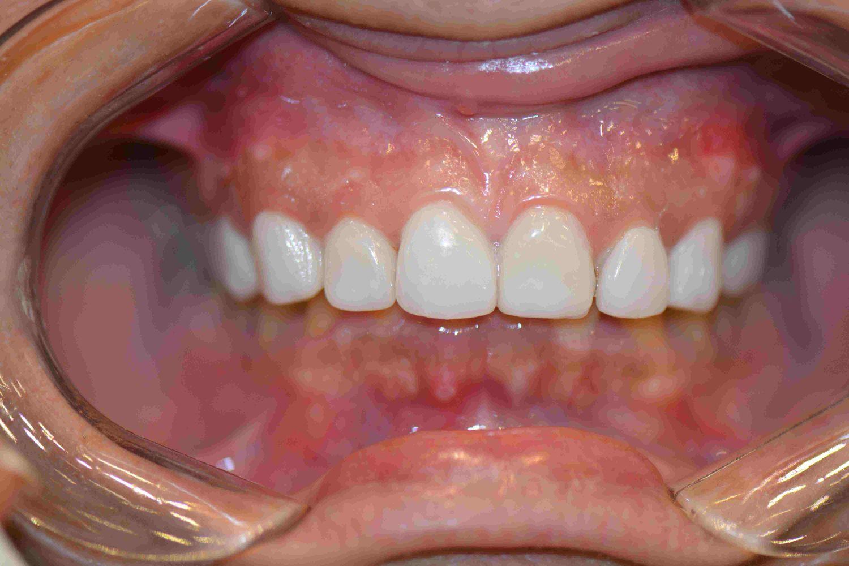 Veneer for Dark teeth