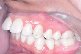 Overjet front teeth