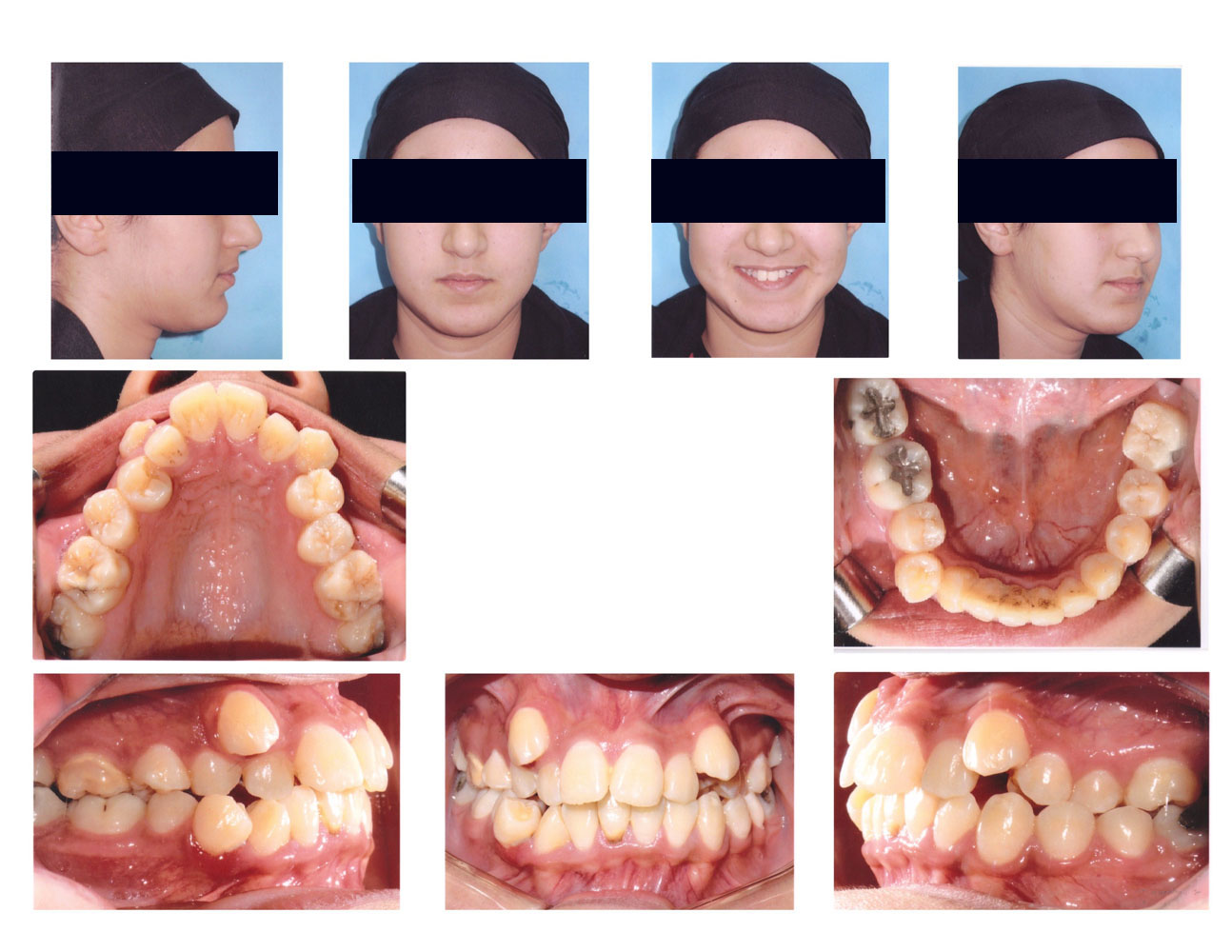 crowding upper and lower jaw - Orthodontic in Egypt