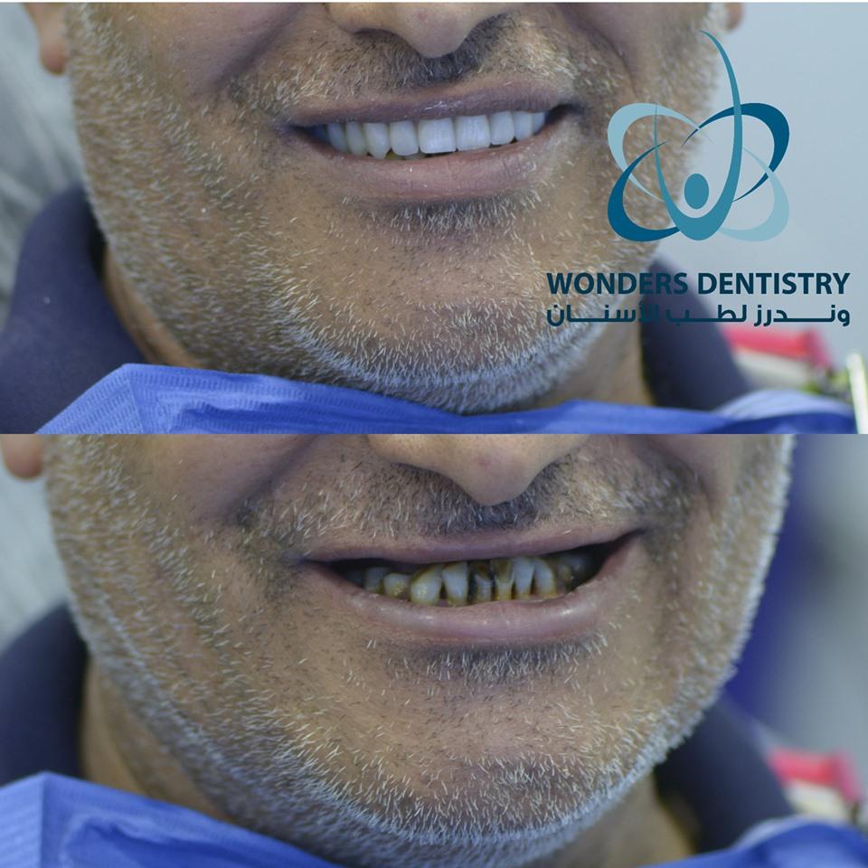 زراعة الأسنان - زراعة الأسنان فى مصر - فقدان اسنان الفك العلوي - أسعار زراعة الأسنان