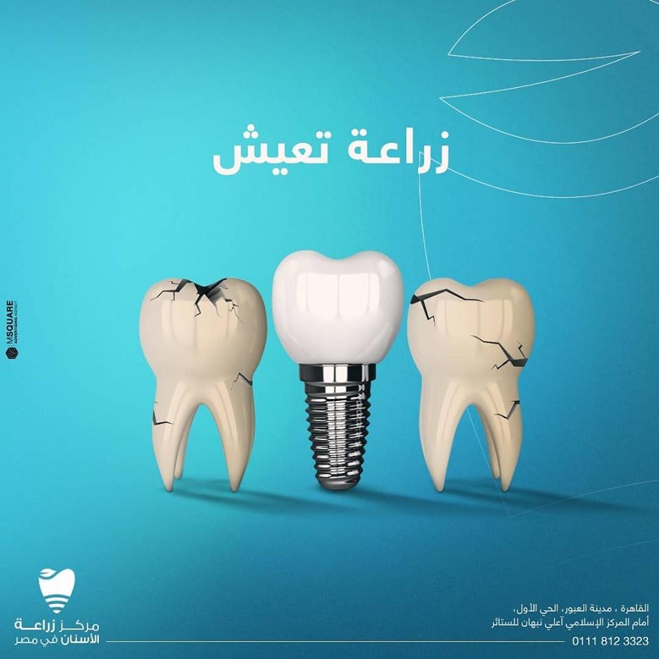 أفضل أنواع زراعة الأسنان في العالم Wonders Dentistry