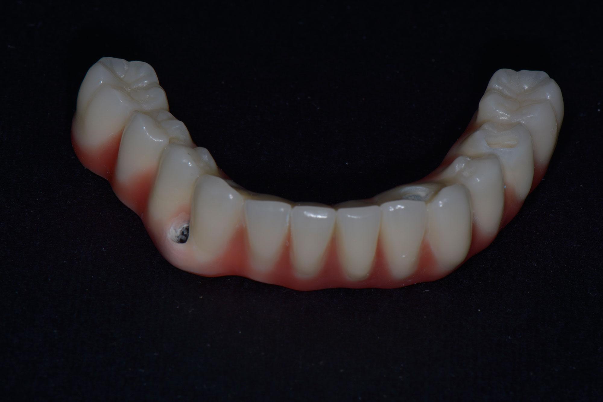 Case Study 5 - فقدان اسنان الفك السفلي