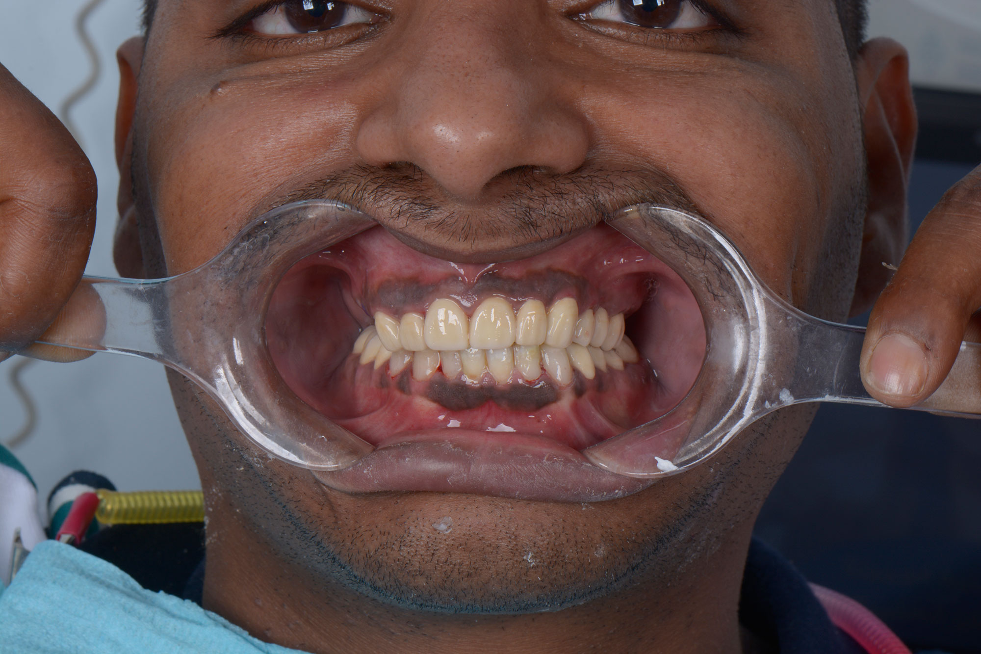 Case Study 7 - تسود وتهدم الاسنان والضروس