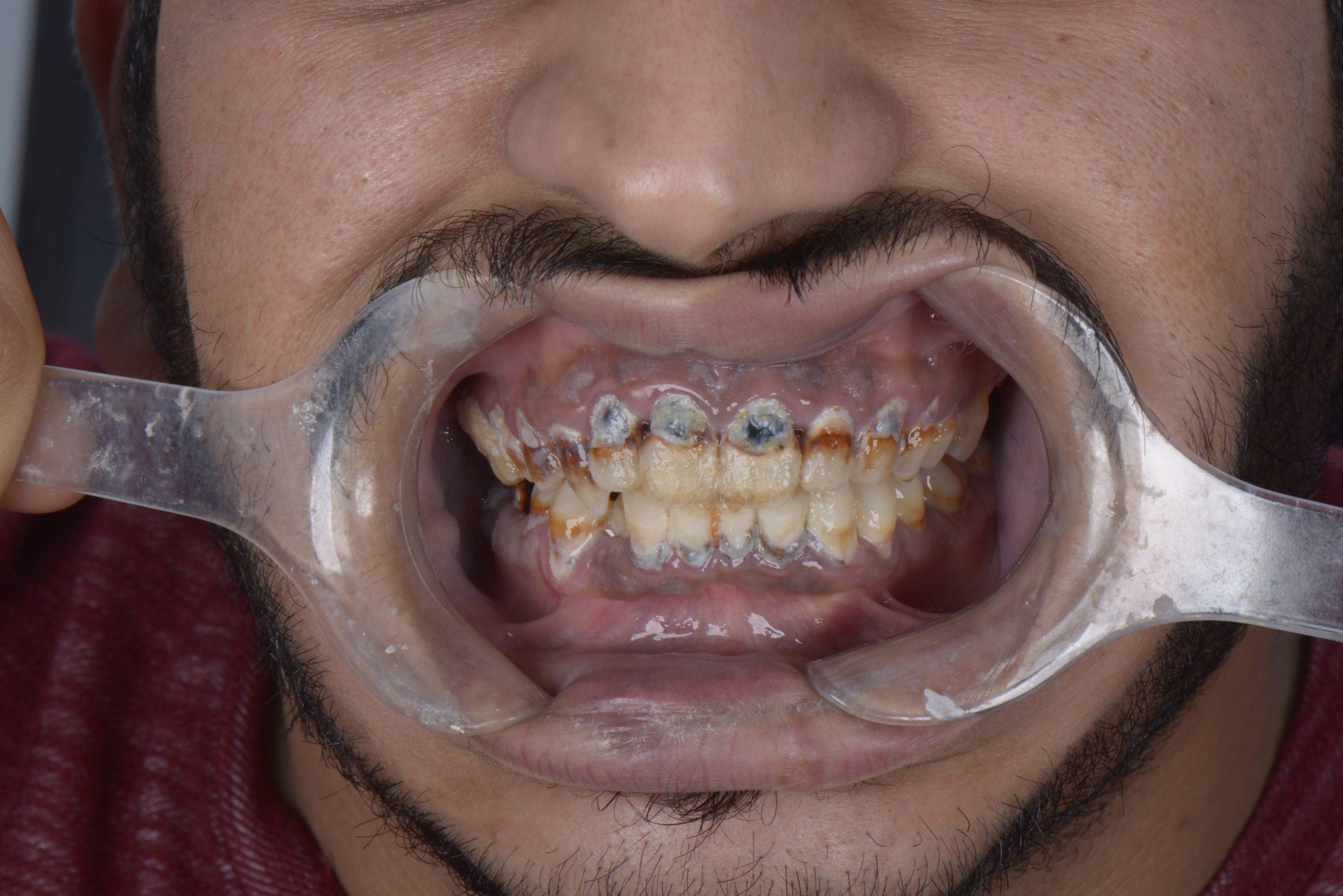 تصليح أسنان