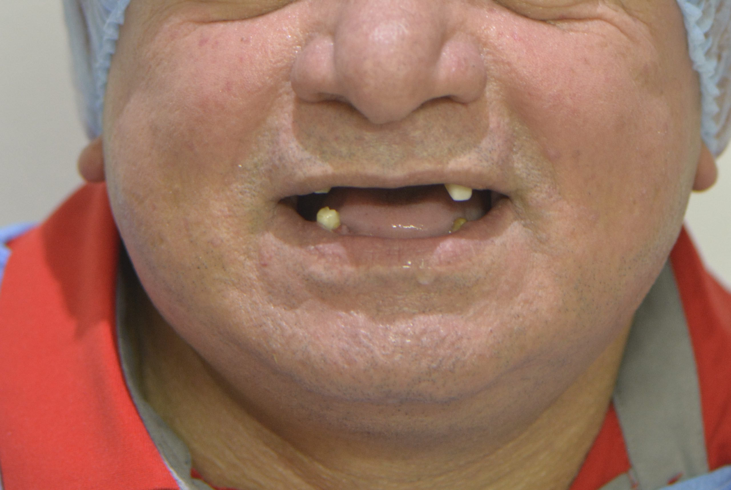 تركيب و زراعة أسنان