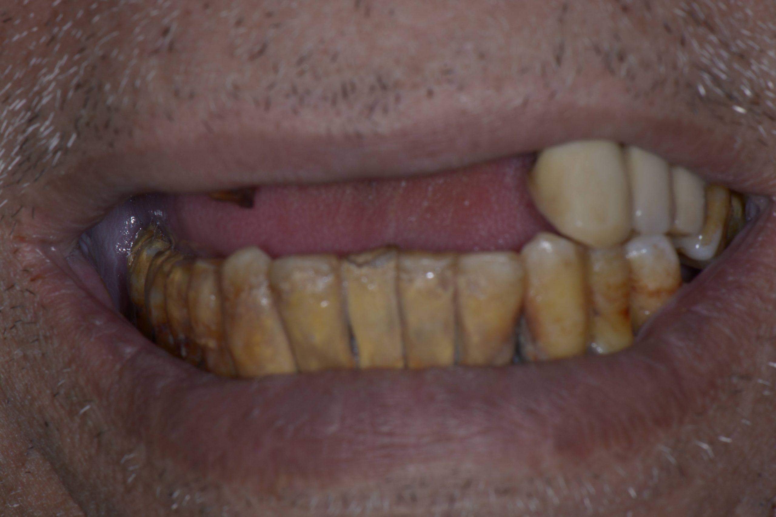 Lost upper teeth