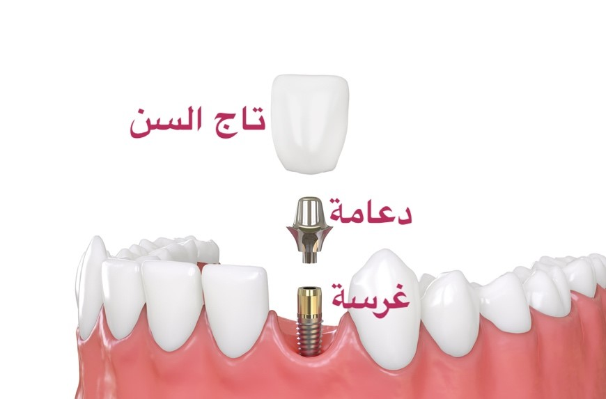Dental implants - زراعة الأسنان فى مصر