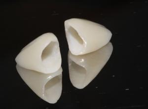 انواع تركيبات الأسنان