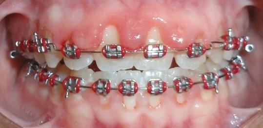 اضرار تقويم الأسنان - مقالات المدونة