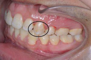 اضرار تقويم الأسنان