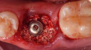 زراعة الاسنان بعد الخلع