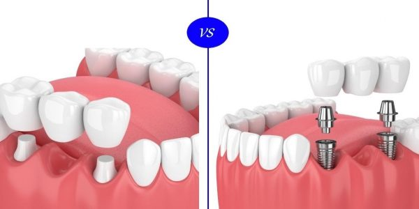 تركيب الأسنان و زراعة الأسنان